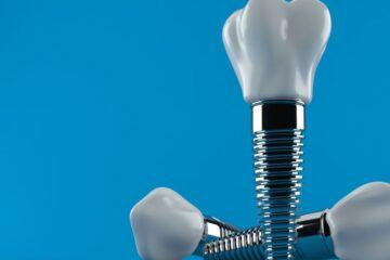 Fogászati implantáció