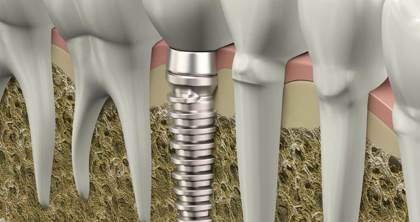Fogászati implantáció Zalaegerszeg